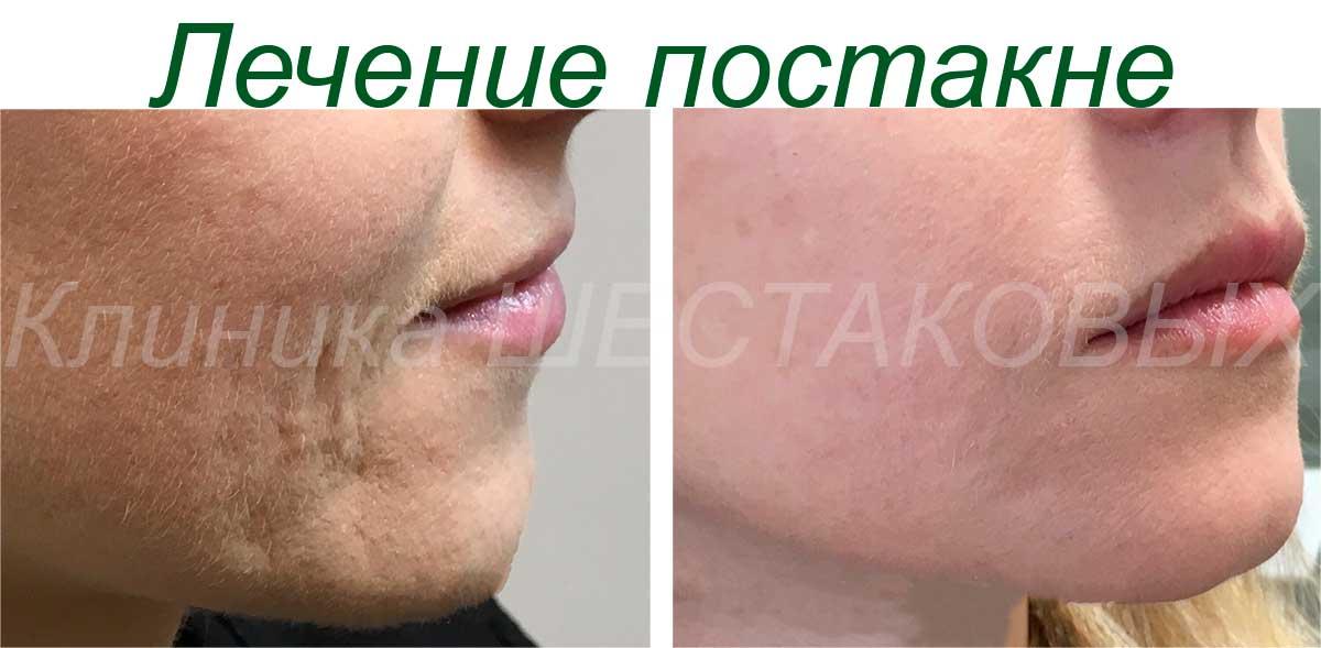 лечить отшелушивающими процедурами Лучше всего лечить угри мягкие пилинги для кожи