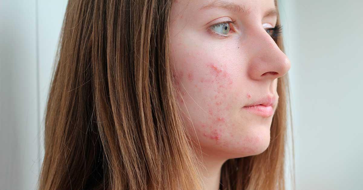 Шрамы от прыщей на лице причина прыщи в подростковом возрасте угревой болезни появление розацеа