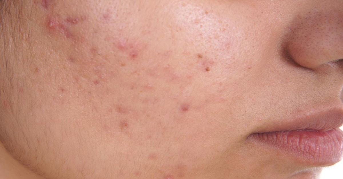 черными точками участки лица или тела